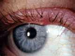 STYE is the common term used for an acute infection of a hair